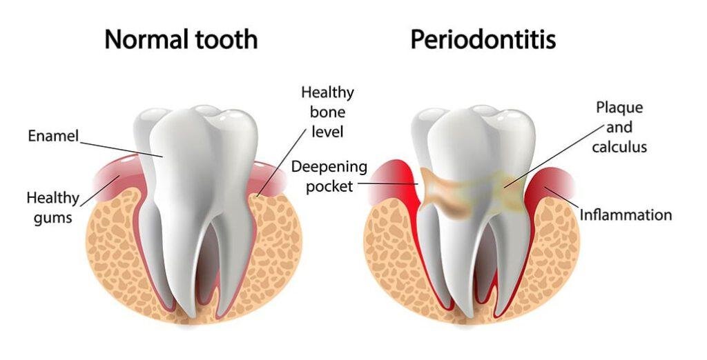 Healthy smile dental Underood periodontitis teeth decay Calamvale: trulyheal