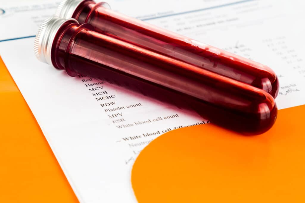 blood-sample-in-test-tubes-with-health-analysis
